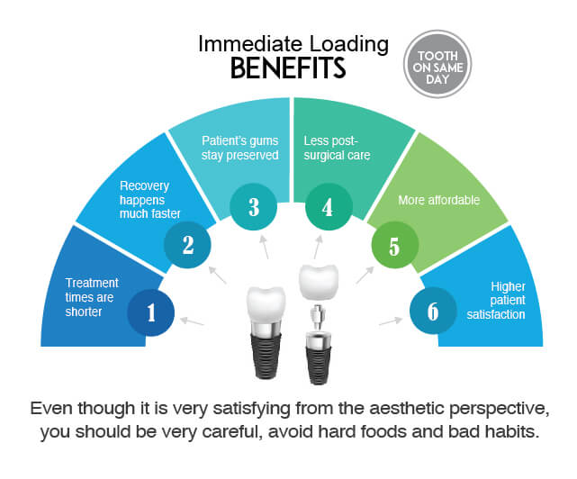 Immediate Loading Implants Westcoast