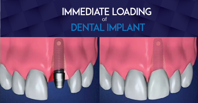 Immediate Loading Implants