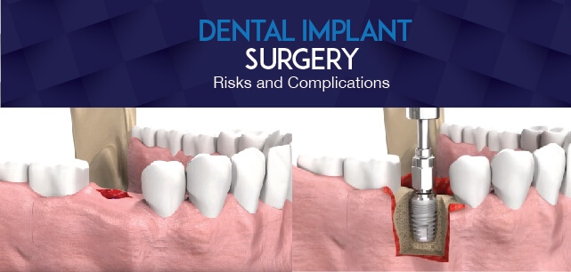 Dental Implant Surgery Potential Risks And Complications