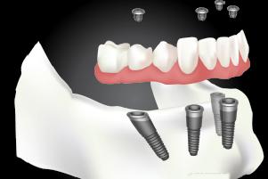 All On 4 Dental Implant Procedure