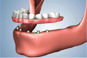 All On 6 Dental Implants Solution