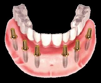 Dental Implants Westcoast Clinic