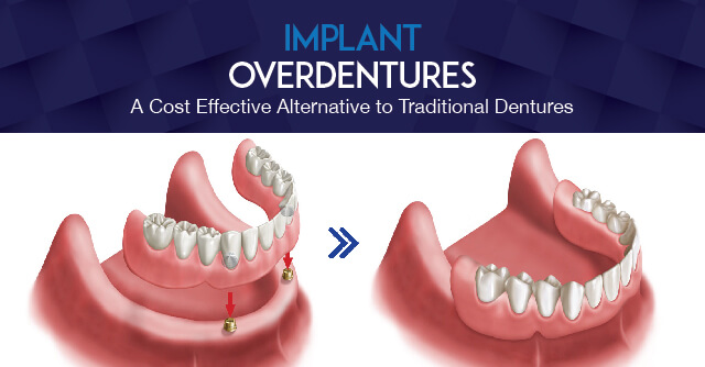 Overdentures: A Cost-Effective Alternative to Traditional