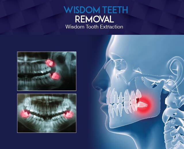 Wisdom Teeth Removal with Westcoast