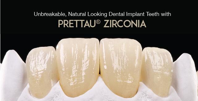 Prettau 174 Zirconia Special Translucent Material From