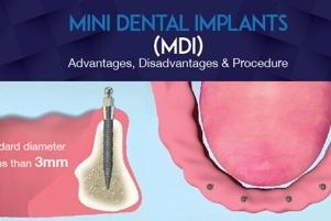 Mini Dental Implants Procedure Westcoast